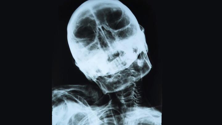 10_Nazca_mummy_X_ray