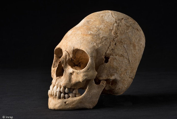 elongated-skull-french-aristocrat-s