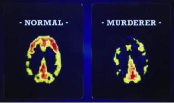 MRI normal vs murderer
