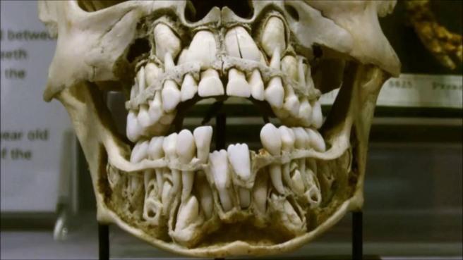 giant_teeth